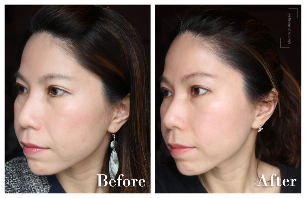 Astute Medical Centre Facial Harmony Program