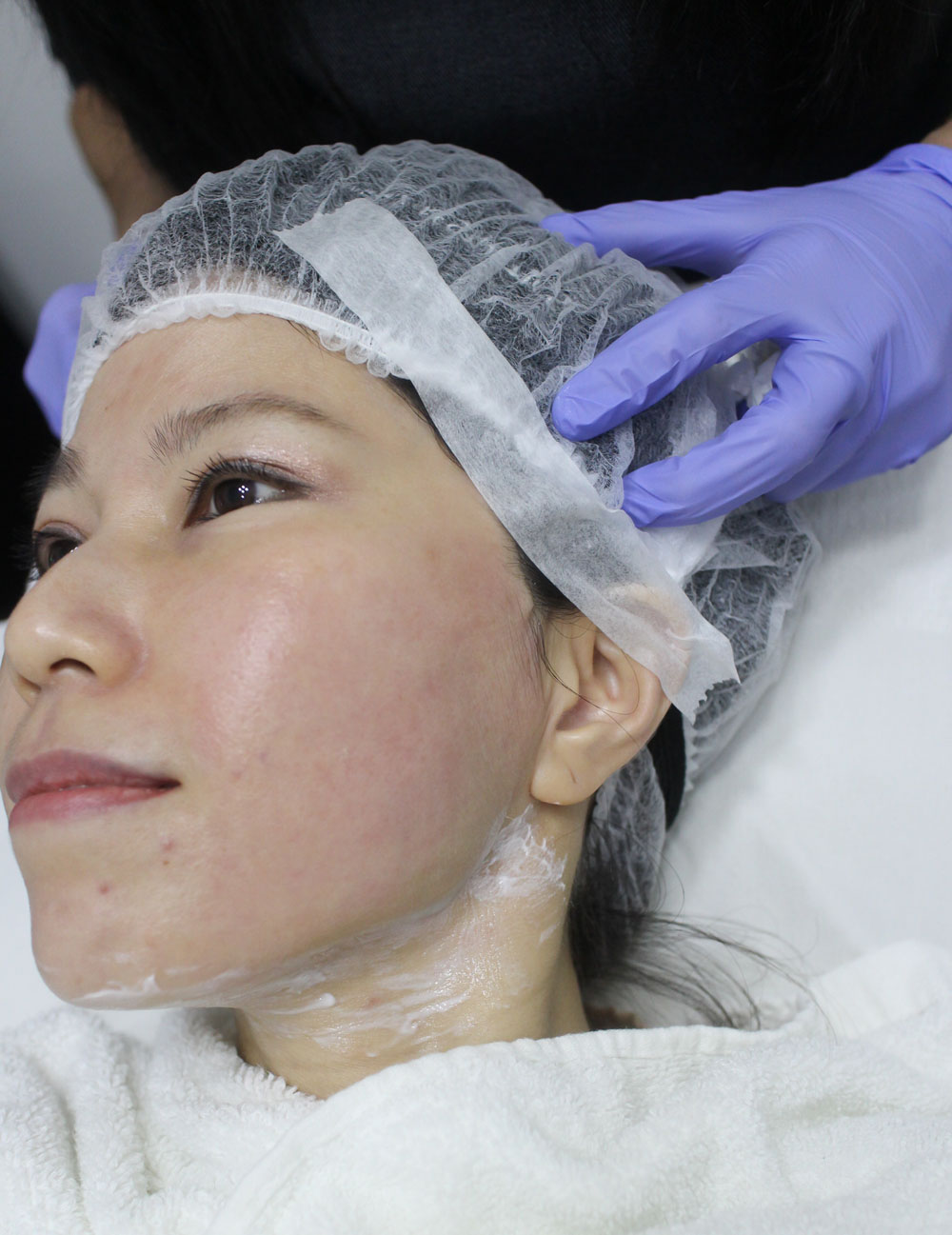Ultherapy Singapore Face lift