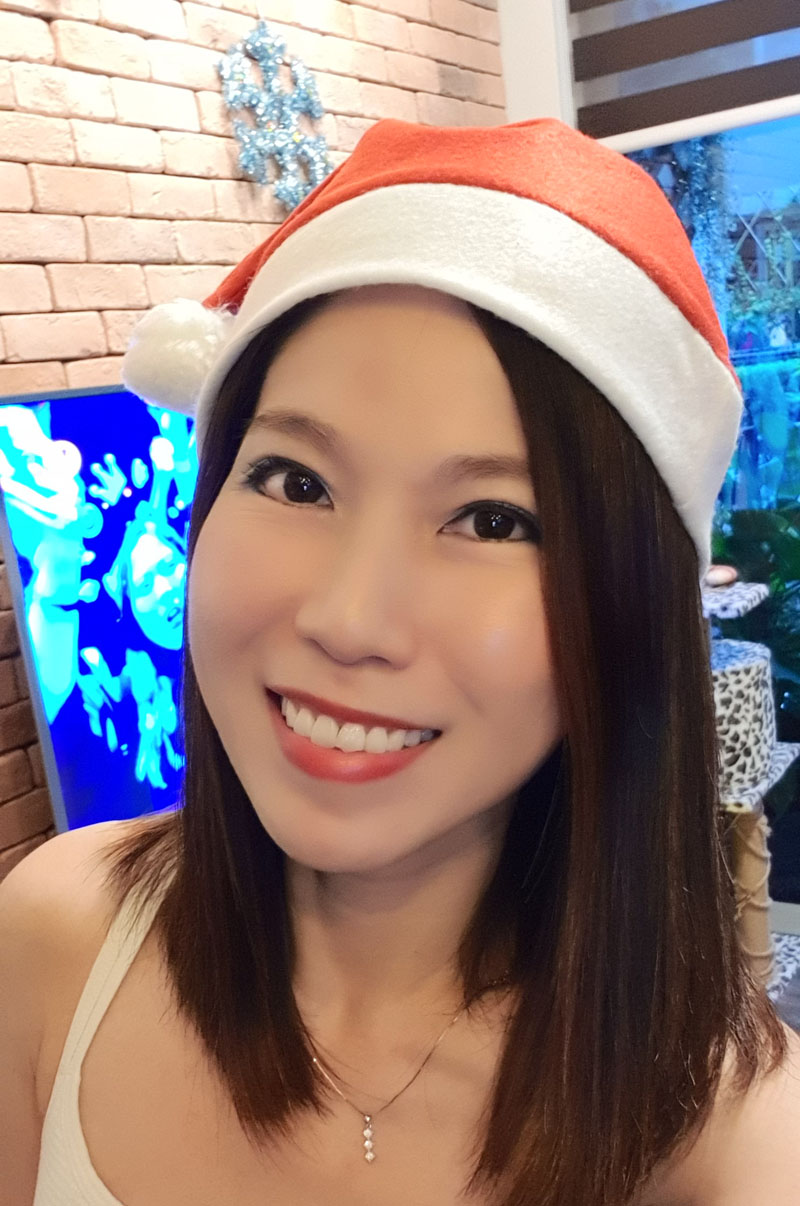 Christmas Ultherapy after 3 months