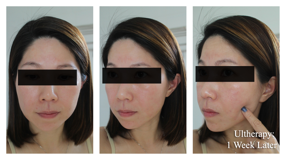 Ultherapy Before After 1 Week