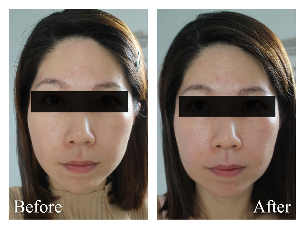 Ultherapy Recovery Jaw