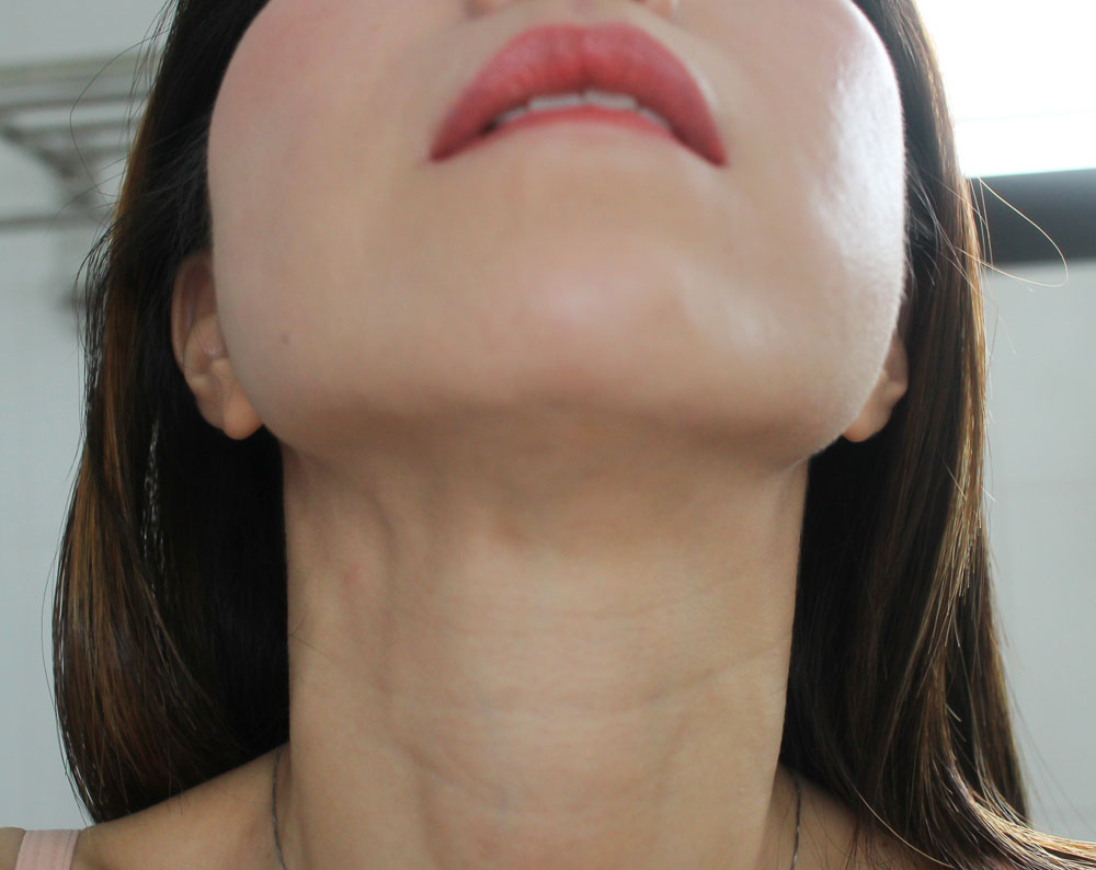 Tightening of Underchin
