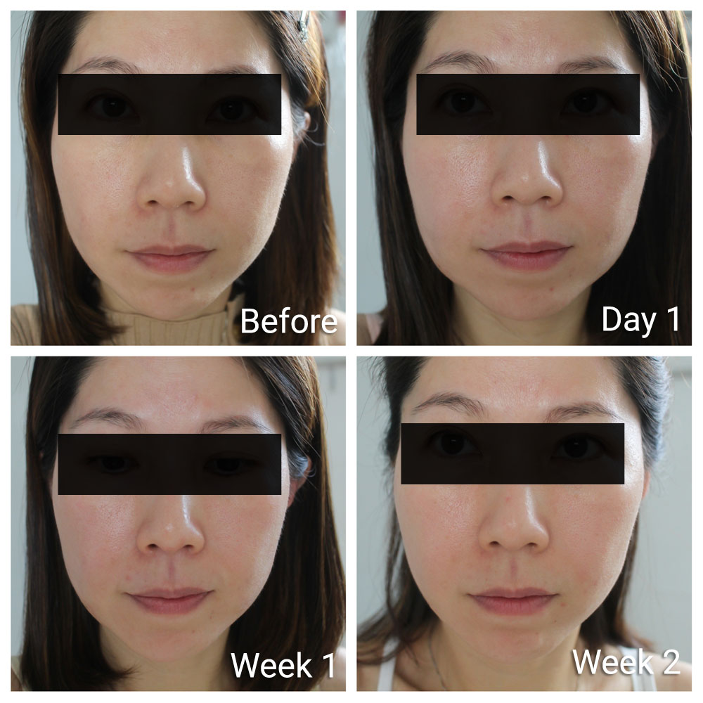 Ultherapy Before After Weekly Progress