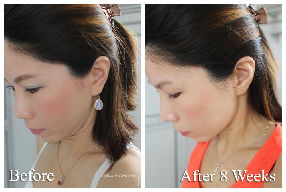 Ultherapy under chin Before After 2 Months
