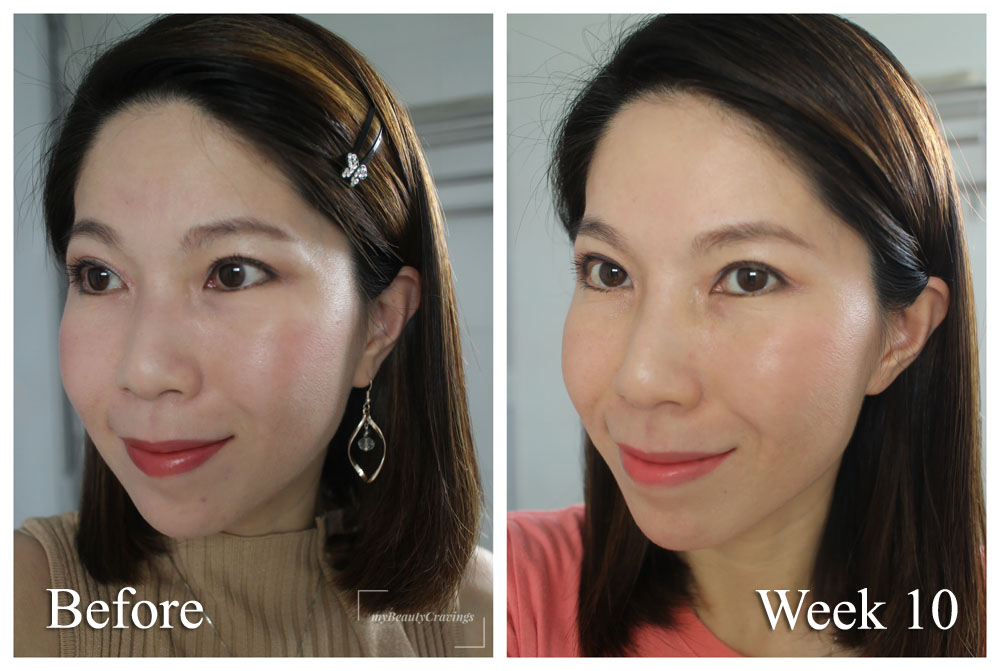 Ultherapy Before After 2 Months