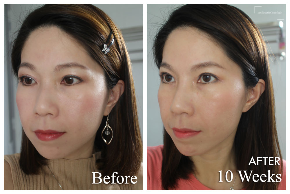 Ultherapy Before After 2 Months (Side)