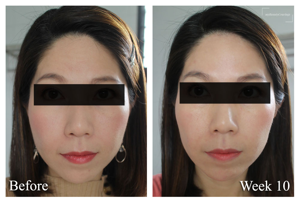 Ultherapy Before After 2 Months (Front 2)