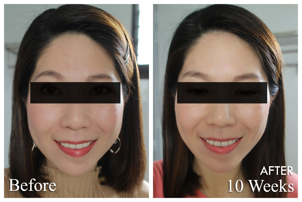 Ultherapy Before After 2 Months (Front)