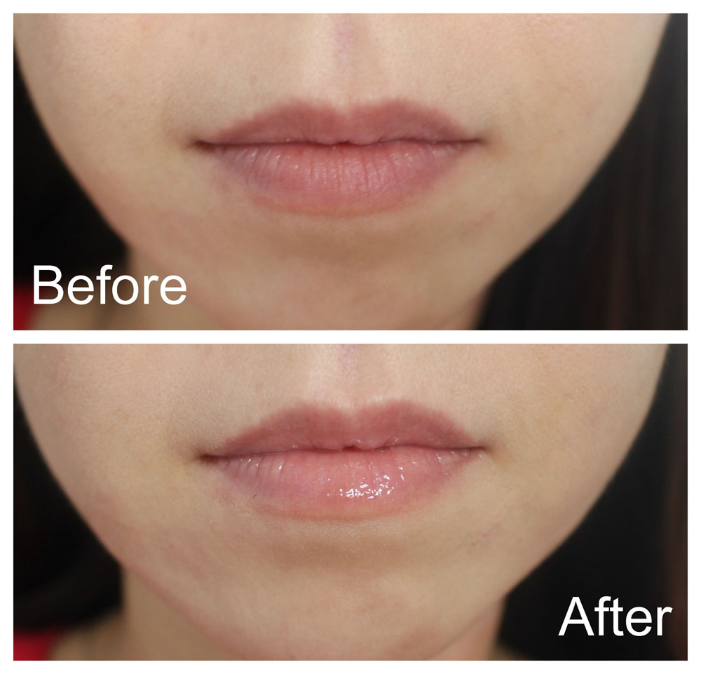 Dior Lip Maximizer Before After